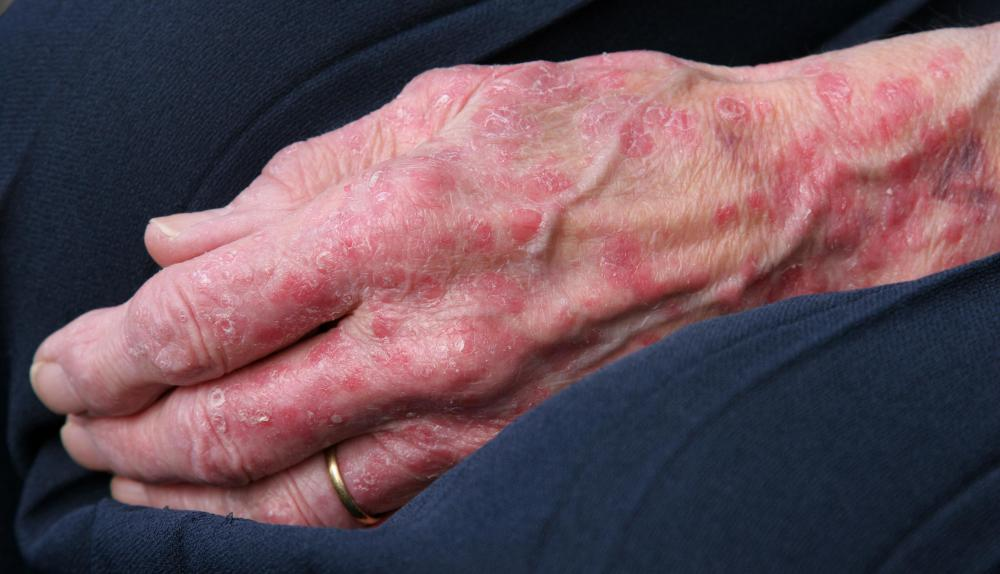 Skin atrophy may lead to rashes and other complications.
