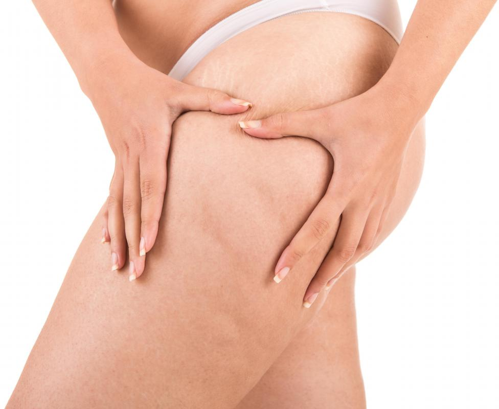 Cellulite is found on certain areas of the body, including the thighs.