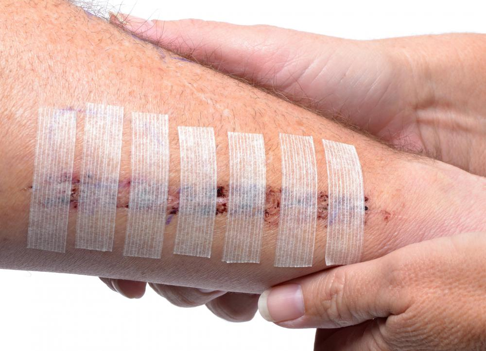 Skin closure tape may be used in place of sutures for patients who have fragile skin.