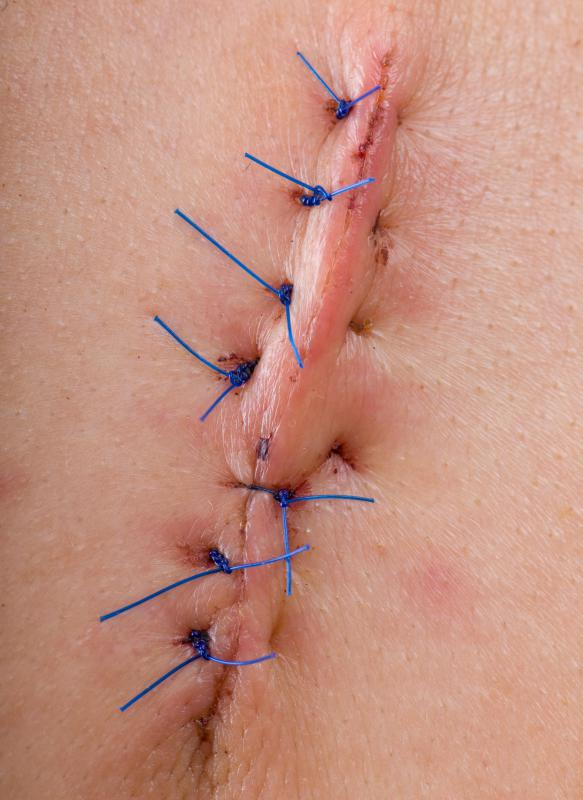 A wound may be sutured closed to promote healing.