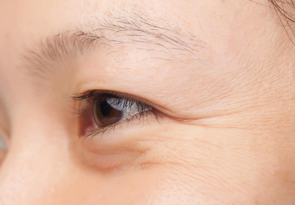 What Are The Best Tips For Eye Skin Care With Pictures