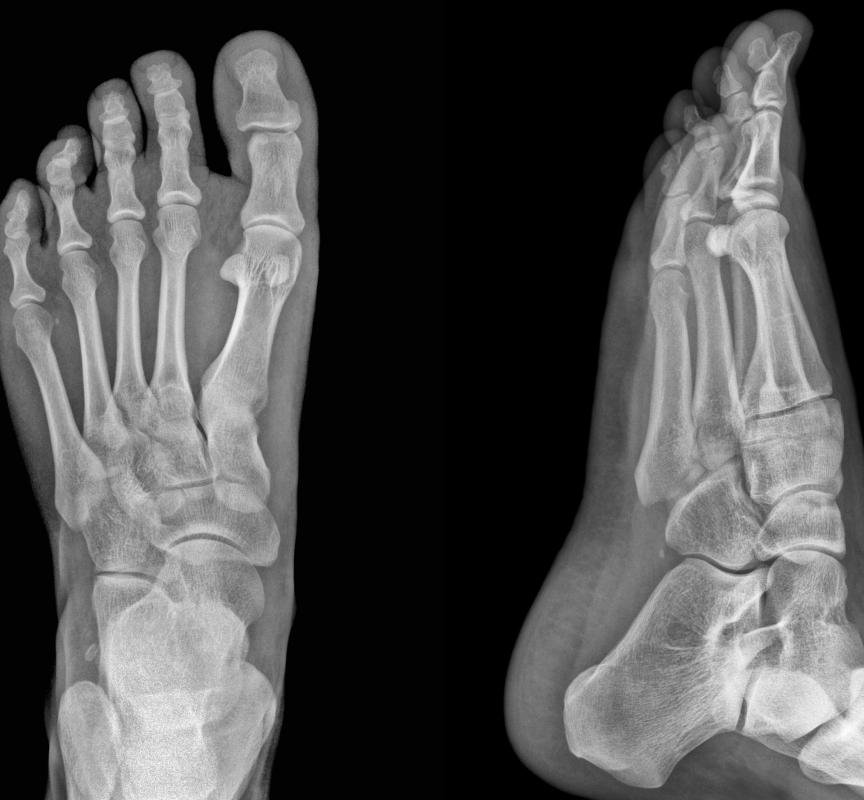 A stress fracture is not immediately visible on an x-ray.