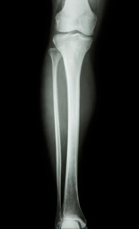 After a femoral osteotomy, an X-ray will be done to make sure the bone is healing as desired.