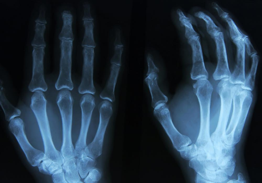 An X-ray may be performed if a doctor suspects an enchondroma is responsible for a bone fracture.