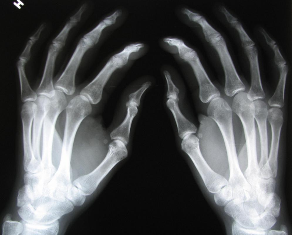 An x-ray will determine if any bones in the hands are broken or damaged.