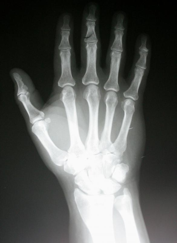 X-rays may be conducted to determine the severity of a thumb injury.