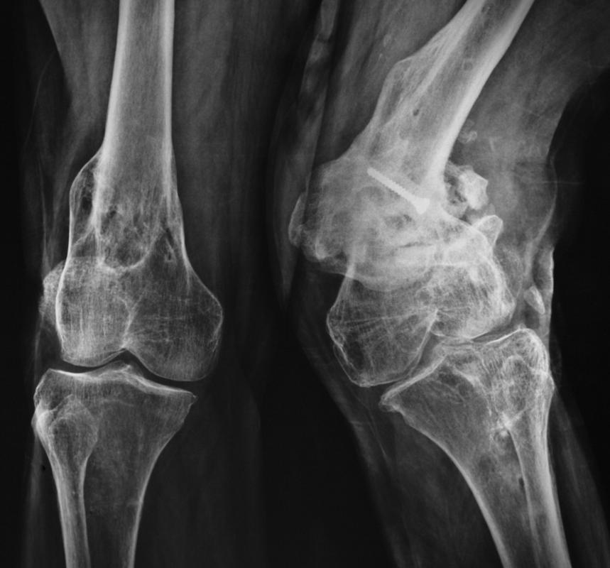 An X-ray may be taken of the knee if a patient is experiencing knee instability.