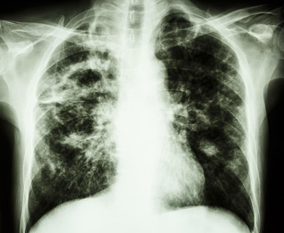 Tuberculosis most commonly lives and thrives in the lungs, although it may disseminate to other areas.