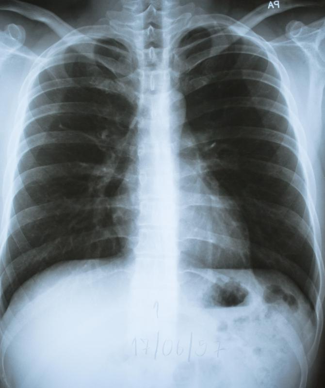 An X-ray of the sternum may be conducted to diagnose a lump on the sternum.