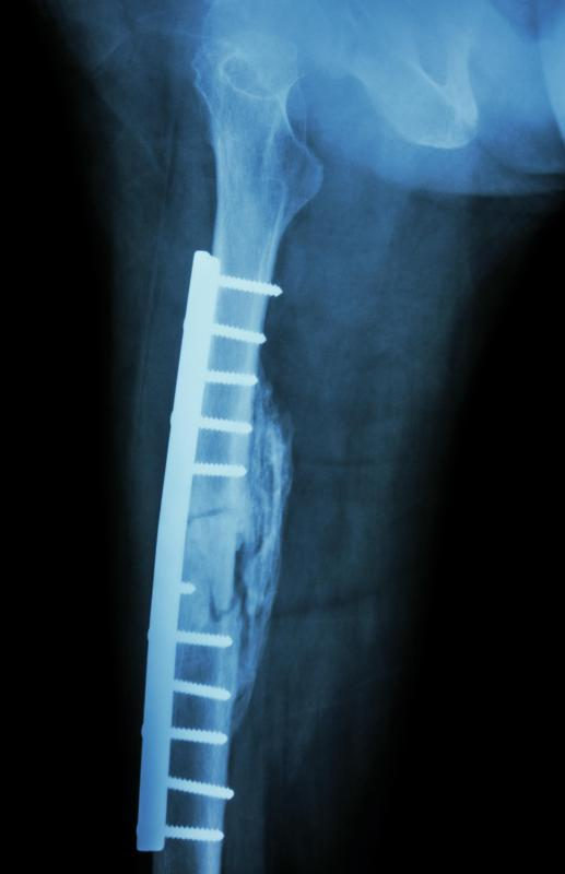 what is a transverse fracture? (with pictures), Human body