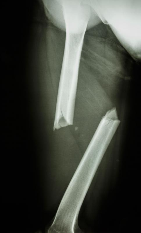 Radiographic anatomy may cover the study of broken bones.