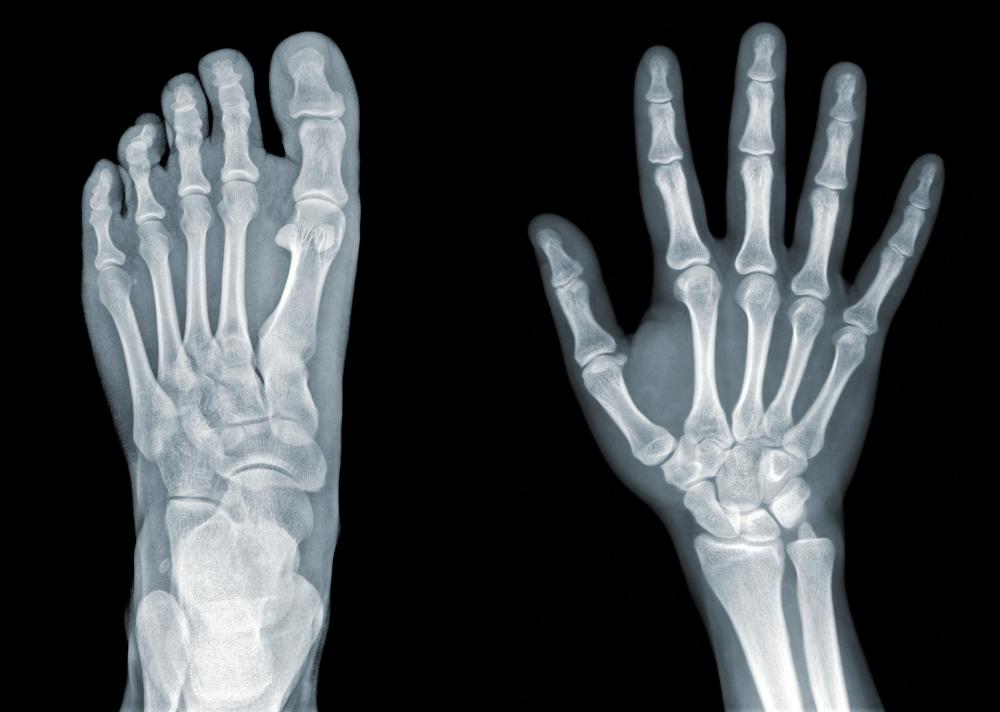 What Is A Radiography Technician With Pictures
