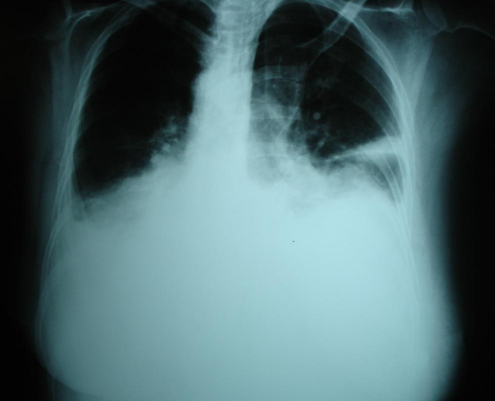 What Is Right Pleural Effusion With Pictures