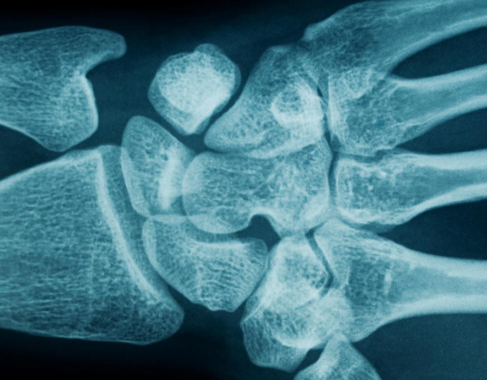 Wrist x-rays might be used to determine whether someone is a good candidate for wrist surgery.