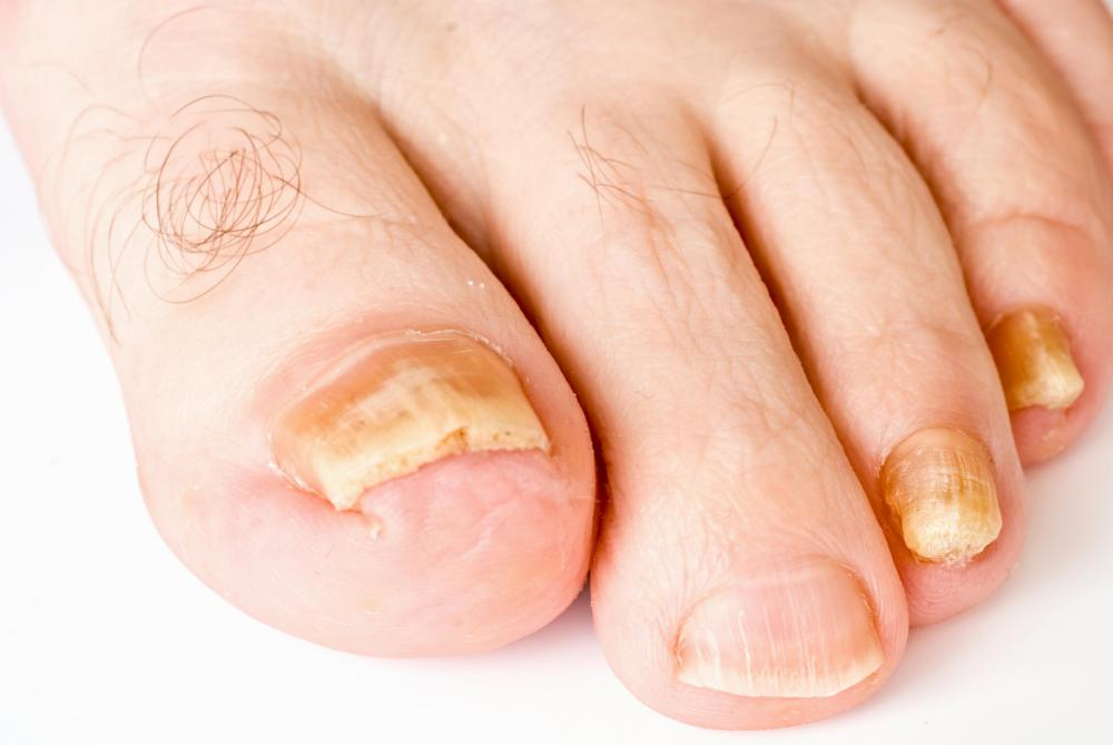 What can I do About an Infected Toenail? (with pictures)