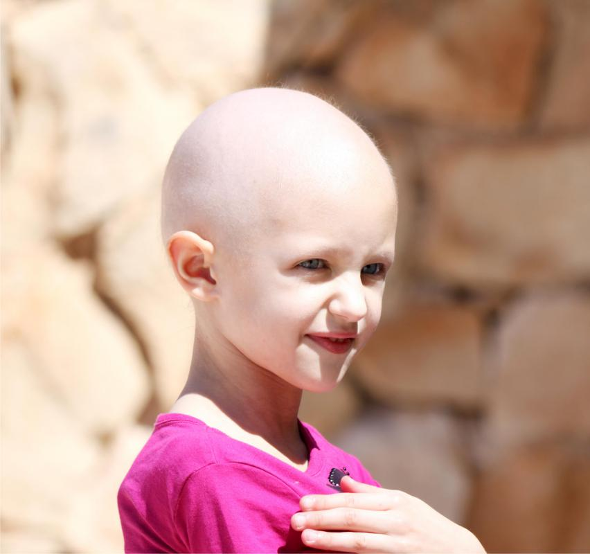 Several forms of pediatric cancer may require a bone cancer transplant for the patient.