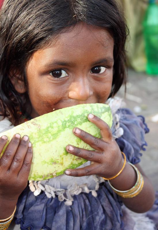Under-nutrition occurs in underdeveloped countries.