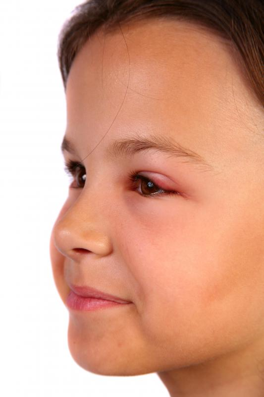 Swelling is a sign of an allergic reaction.