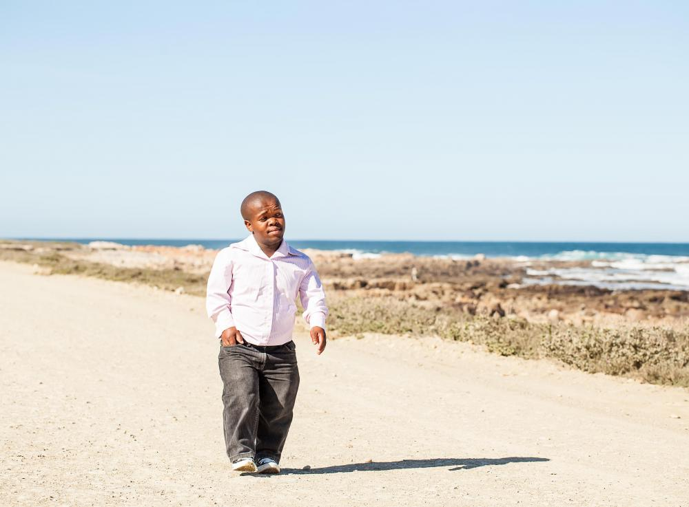 People with dwarfism often struggle to be accepted by society.