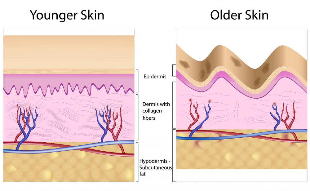 A diagram of younger and older skin showing the decrease in collagen in older skin. Dermal fillers are used to help smooth the skin by strengthening the dermis.