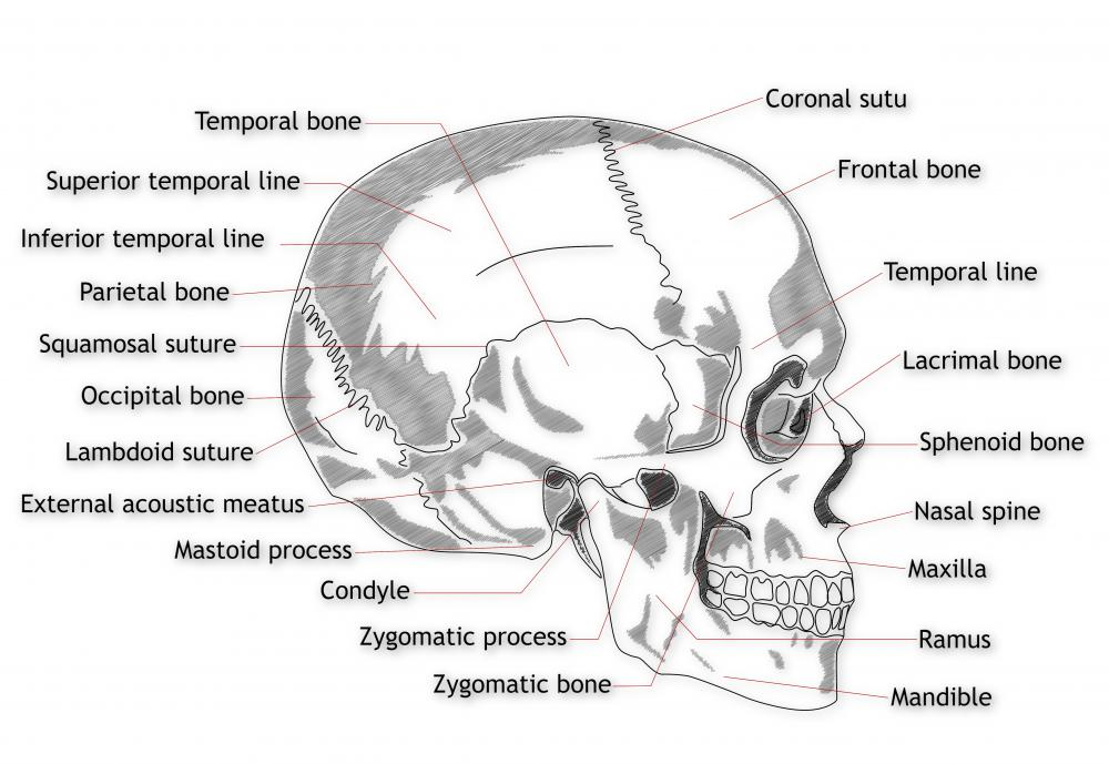 Everyone has two temporal bones, one on either side of the skull, with the bones comprising part of the sides and base of the skull.
